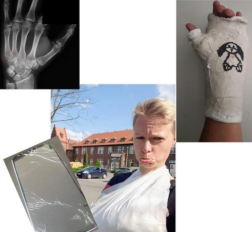 Złamanie kości śródręcza