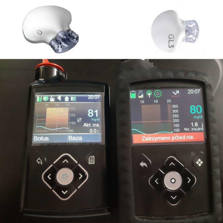 Sensor Guardian 3 vs Enlite