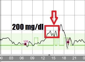 Hiperglikemia po posiłku - insulina Fiasp
